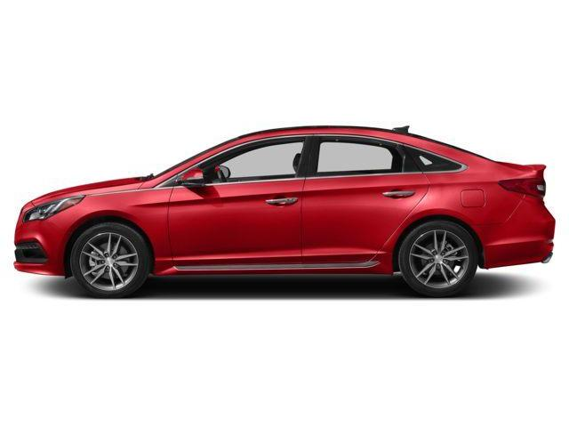 2017 Hyundai Sonata 2.0T Sport Ultimate (Stk: 503210) in Milton - Image 2 of 10