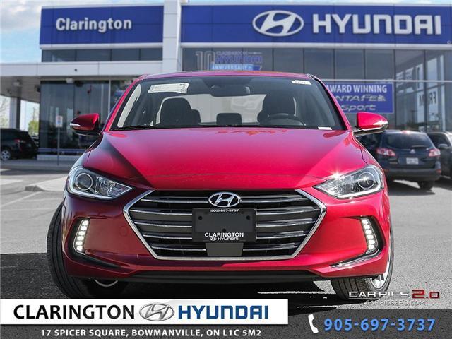 2018 Hyundai Elantra GLS (Stk: 17886) in Clarington - Image 2 of 27