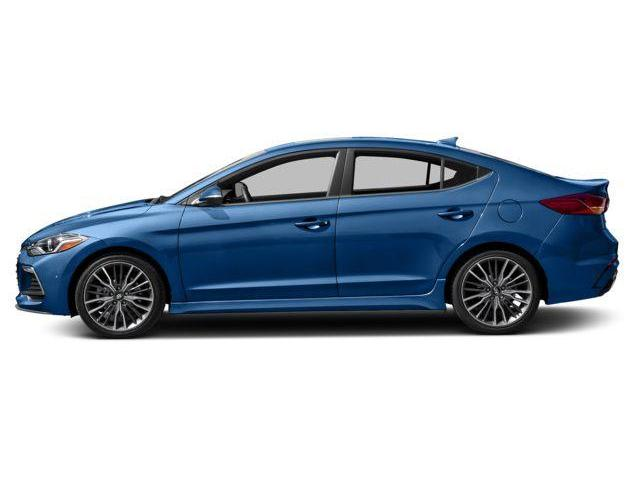 2018 Hyundai Elantra Sport (Stk: 548362) in Whitby - Image 2 of 9