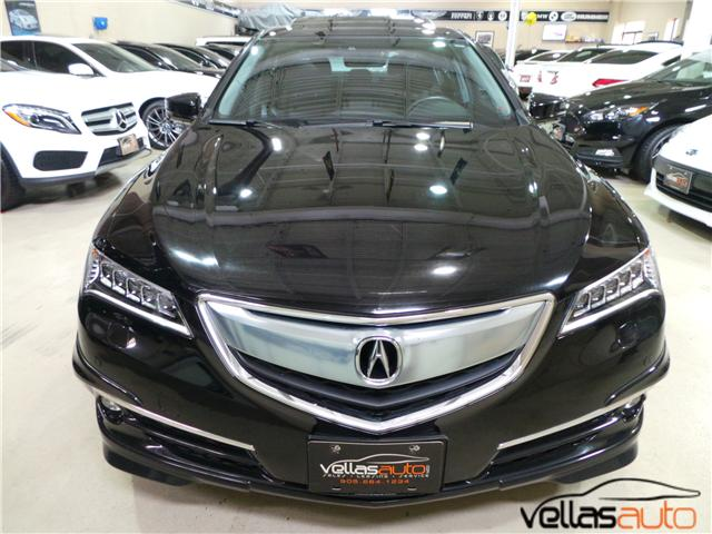 2015 Acura TLX  (Stk: NP0358) in Vaughan - Image 2 of 23