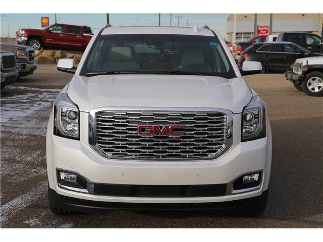 2018 GMC Yukon Denali (Stk: 159441) in Medicine Hat - Image 2 of 33