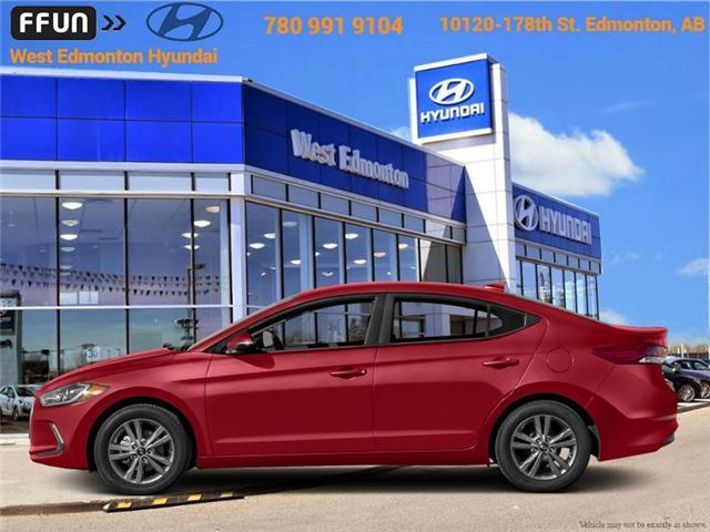 2018 Hyundai Elantra  (Stk: EL85345) in Edmonton - Image 1 of 1
