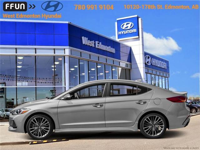 2018 Hyundai Elantra Sport (Stk: EL88475) in Edmonton - Image 1 of 1