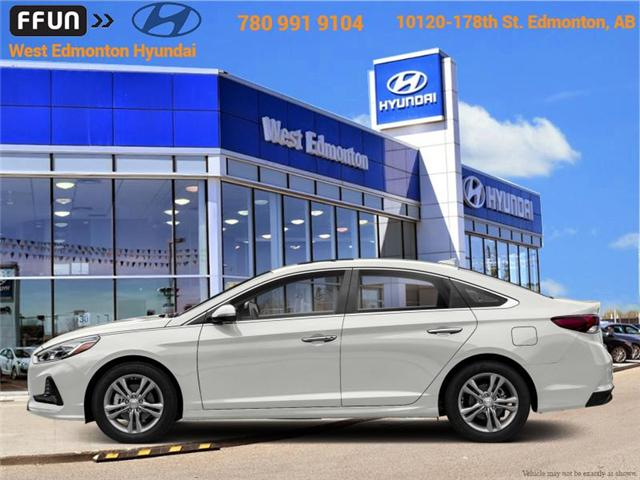 2018 Hyundai Sonata  (Stk: SN82784) in Edmonton - Image 1 of 1
