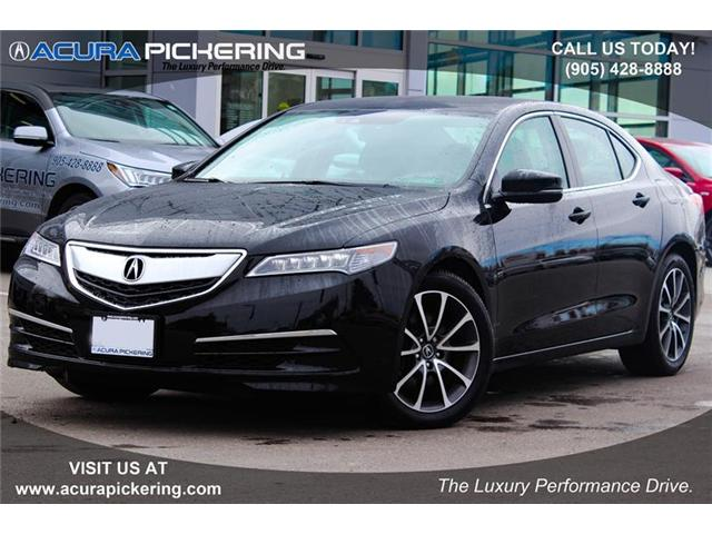 2017 Acura TLX Base (Stk: AR249) in Pickering - Image 1 of 22