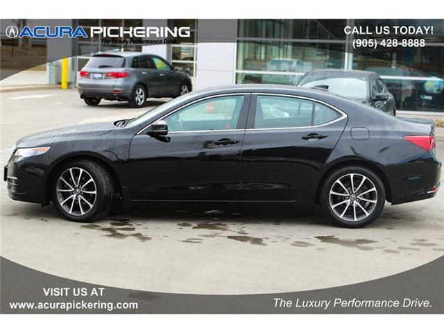 2017 Acura TLX Base (Stk: AR249) in Pickering - Image 2 of 22
