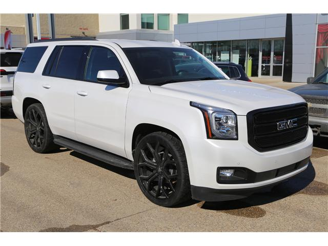 2018 GMC Yukon SLT (Stk: 157449) in Medicine Hat - Image 1 of 31
