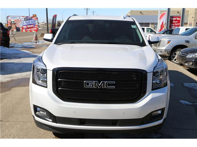 2018 GMC Yukon SLT (Stk: 157449) in Medicine Hat - Image 2 of 31