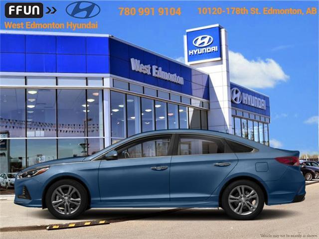 2018 Hyundai Sonata  (Stk: SN86886) in Edmonton - Image 1 of 1