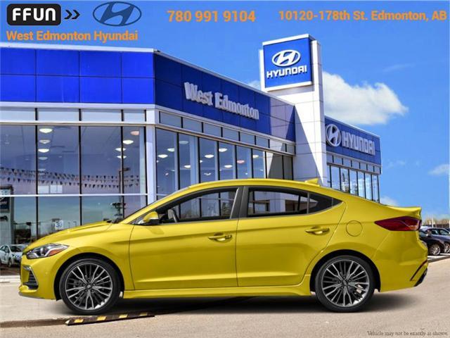 2018 Hyundai Elantra Sport (Stk: EL87511) in Edmonton - Image 1 of 1