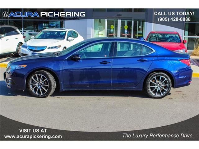 2017 Acura TLX Base (Stk: AR266) in Pickering - Image 2 of 22