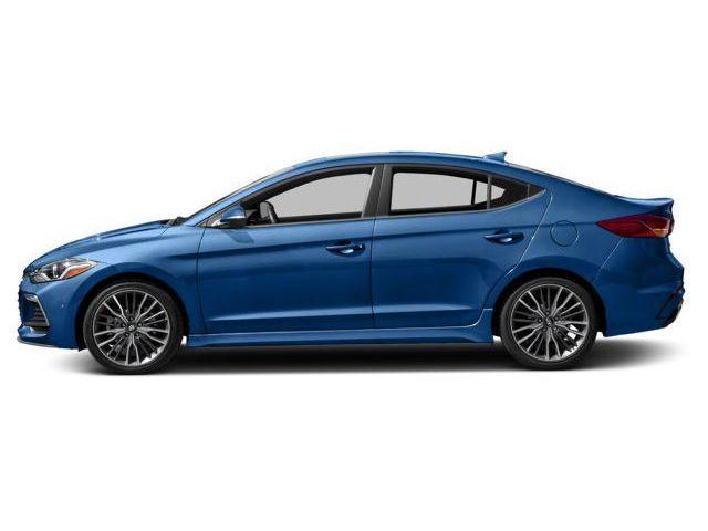 2018 Hyundai Elantra Sport Tech (Stk: 57763) in Kitchener - Image 2 of 9