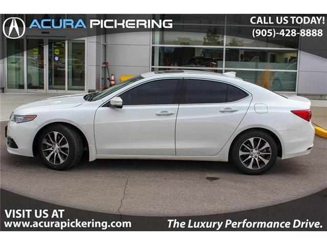 2017 Acura TLX Base (Stk: AP4566) in Pickering - Image 2 of 22
