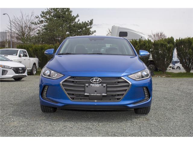 2018 Hyundai Elantra GLS (Stk: JE542584) in Abbotsford - Image 2 of 28