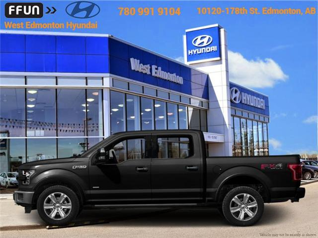 2015 Ford F-150 Lariat (Stk: 88008A) in Edmonton - Image 1 of 1