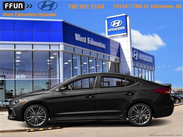 2018 Hyundai Elantra Sport (Stk: EL88135) in Edmonton - Image 1 of 1