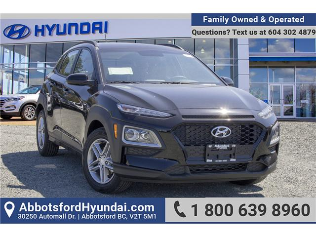 New 2018 Hyundai Kona 2.0L Essential at $146 b/w for sale in ...