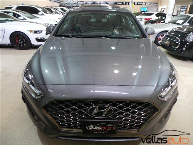 2018 Hyundai Sonata  (Stk: NP2683) in Vaughan - Image 2 of 23