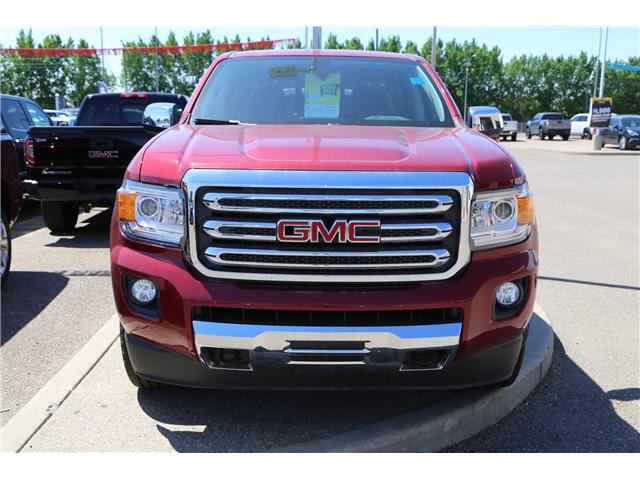 2018 GMC Canyon SLT (Stk: 161498) in Medicine Hat - Image 2 of 24