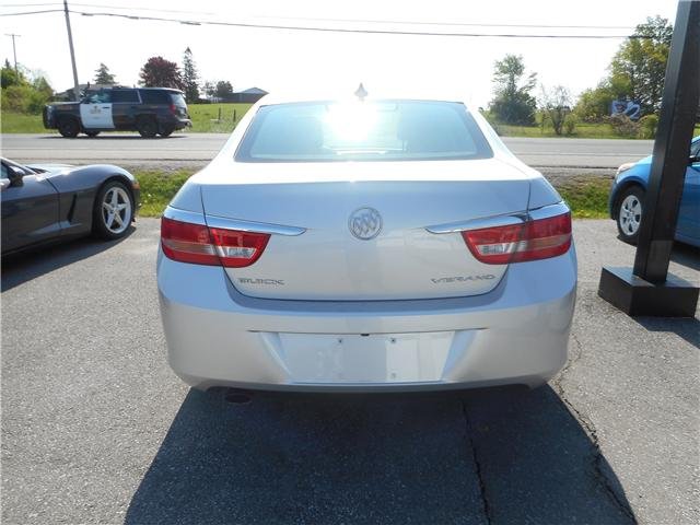 2015 Buick Verano Base (Stk: NC 3570) in Cameron - Image 3 of 8