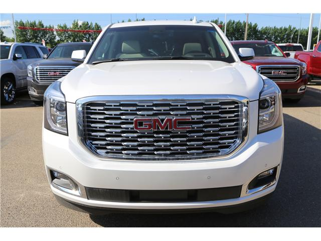 2018 GMC Yukon Denali (Stk: 159690) in Medicine Hat - Image 2 of 33