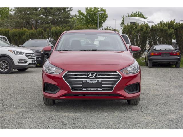 2018 Hyundai Accent  (Stk: JA031128) in Abbotsford - Image 2 of 27