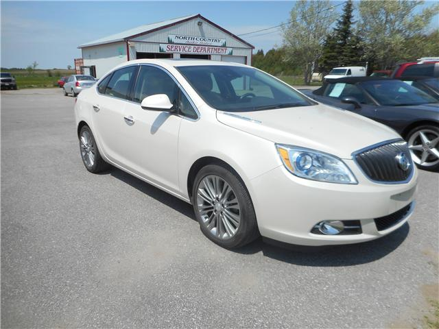 2015 Buick Verano Leather (Stk: NC 3571) in Cameron - Image 2 of 12