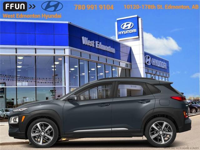 2018 Hyundai Kona  (Stk: KN88409) in Edmonton - Image 1 of 1