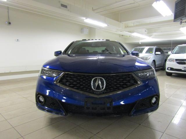 2018 Acura TLX Tech A-Spec (Stk: AP2975) in Toronto - Image 2 of 27