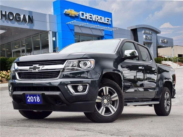 2018 Chevrolet Colorado LT (Stk: A104287) in Scarborough - Image 1 of 8