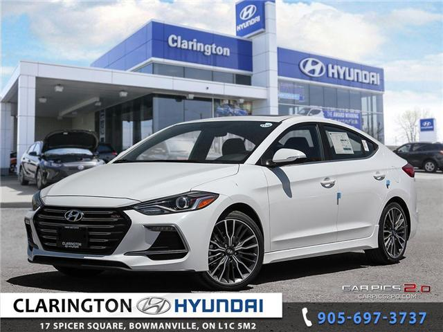 2018 Hyundai Elantra Sport (Stk: 18322) in Clarington - Image 1 of 27