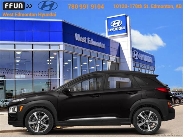 2018 Hyundai Kona  (Stk: KN85050) in Edmonton - Image 1 of 1