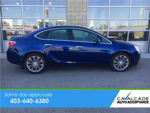 2014 Buick Verano Leather Package (Stk: 58807) in Calgary - Image 2 of 19