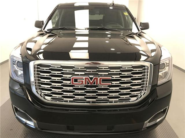 2018 GMC Yukon Denali (Stk: 194060) in Lethbridge - Image 2 of 19