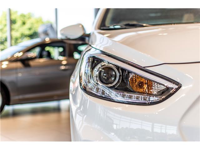 2017 Hyundai Accent GLS (Stk: R76932) in Ottawa - Image 5 of 10