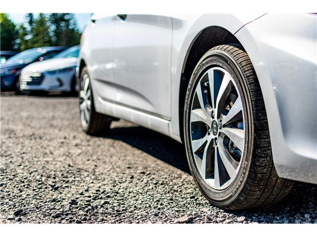 2017 Hyundai Accent SE (Stk: R76935) in Ottawa - Image 5 of 10