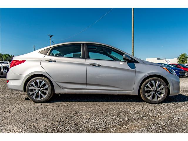 2017 Hyundai Accent SE (Stk: R76935) in Ottawa - Image 2 of 10