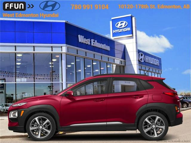 2018 Hyundai Kona 2.0L Preferred (Stk: KN82910) in Edmonton - Image 1 of 1