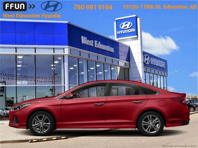 2018 Hyundai Sonata GL (Stk: P0628) in Edmonton - Image 1 of 1