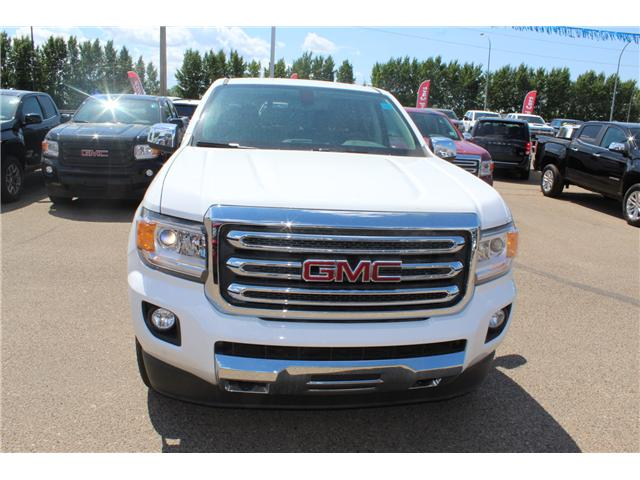 2018 GMC Canyon SLT (Stk: 161423) in Medicine Hat - Image 2 of 25