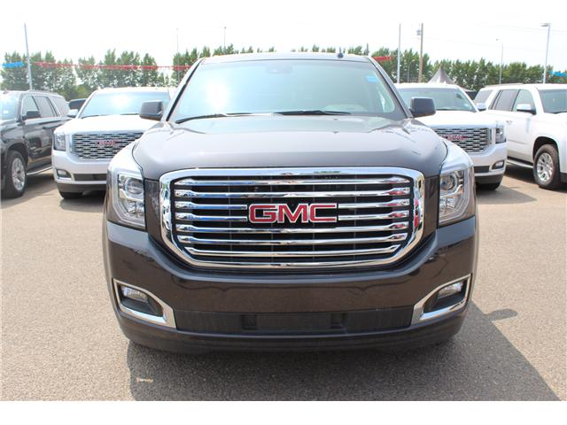 2018 GMC Yukon SLT (Stk: 158727) in Medicine Hat - Image 2 of 30