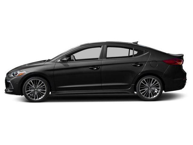 2018 Hyundai Elantra Sport (Stk: EL86942) in Edmonton - Image 2 of 11
