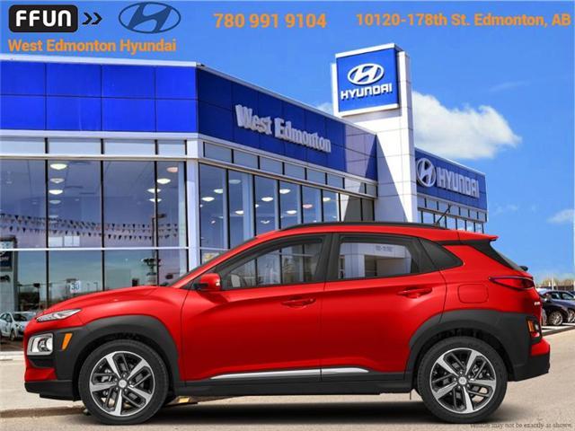 2018 Hyundai Kona 1.6T Ultimate (Stk: KN80585) in Edmonton - Image 1 of 1