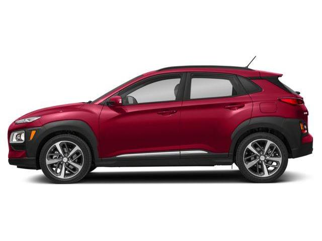 2018 Hyundai KONA 1.6T Ultimate (Stk: KA18040) in Woodstock - Image 2 of 9