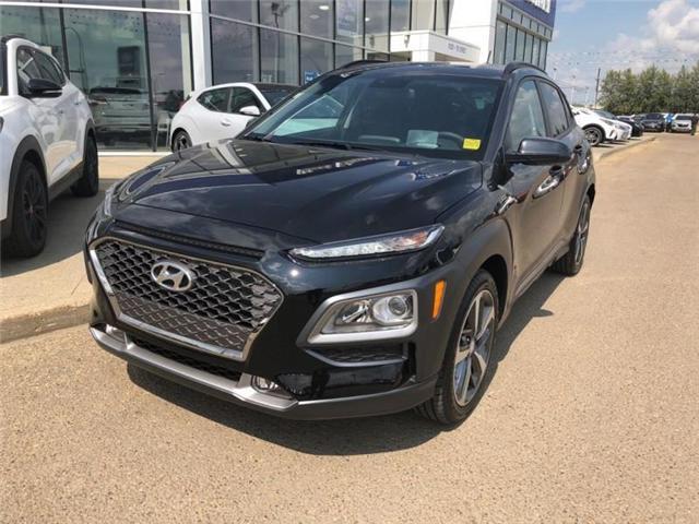 2018 Hyundai Kona 1.6T Trend (Stk: E4052) in Edmonton - Image 2 of 22