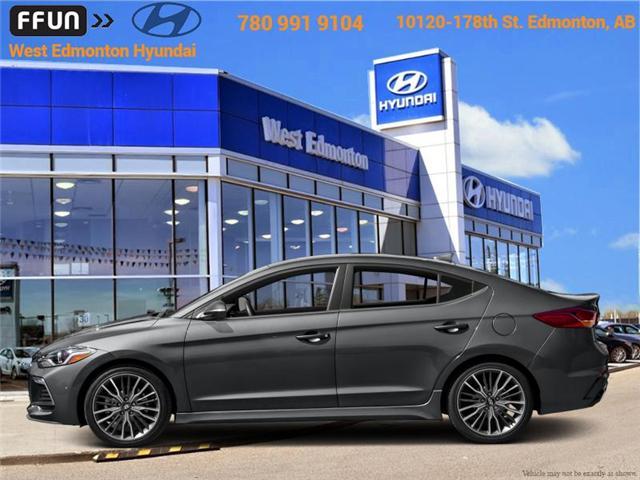2018 Hyundai Elantra Sport (Stk: EL87722) in Edmonton - Image 1 of 1