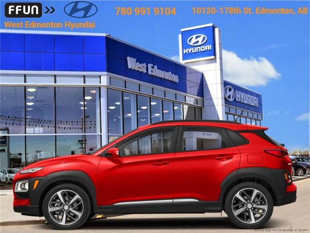2018 Hyundai Kona 1.6T Ultimate (Stk: KN82714) in Edmonton - Image 1 of 1