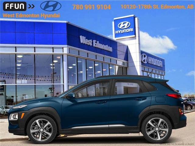 2018 Hyundai Kona 1.6T Ultimate (Stk: KN83139) in Edmonton - Image 1 of 1