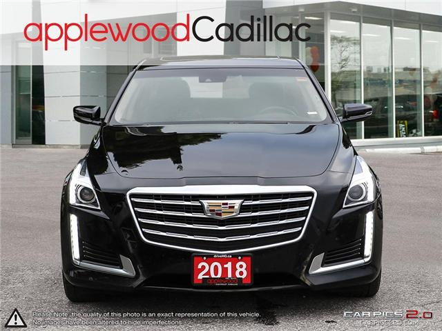 2018 Cadillac CTS 3.6L Luxury (Stk: 8366A) in Mississauga - Image 2 of 27