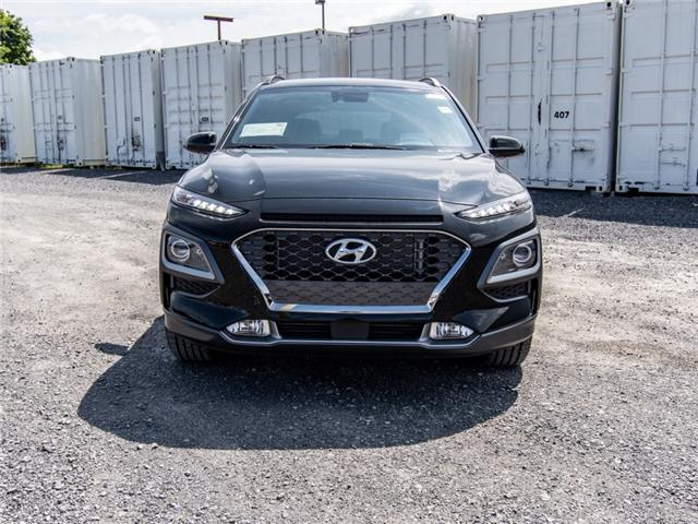 2018 Hyundai KONA 1.6T Ultimate (Stk: R86389) in Ottawa - Image 2 of 10
